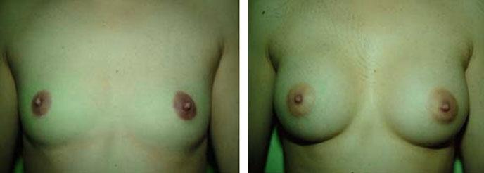 Photo d'augmentation mammaire avant après