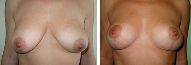 Photo de lifting des seins avant après