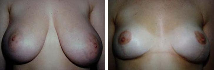 Photo de réduction mammaire avant après