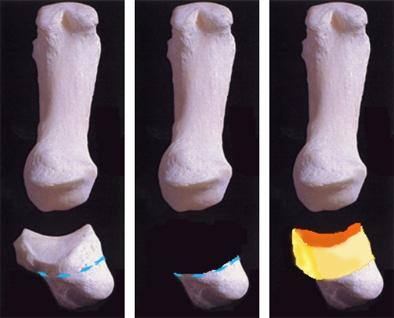 Principe de la chirurgie de la Rhizarthrose par reconstruction articulaire à l'aide d'un greffon cartilagineux