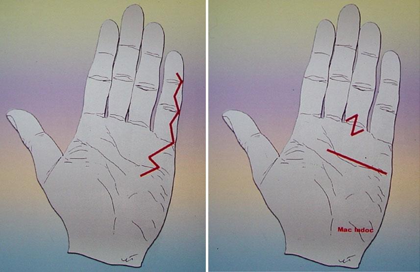 Exemples d'incisions maladie de Dupuytren